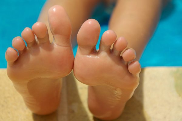Feet by the pool with Plantar Fasciitis